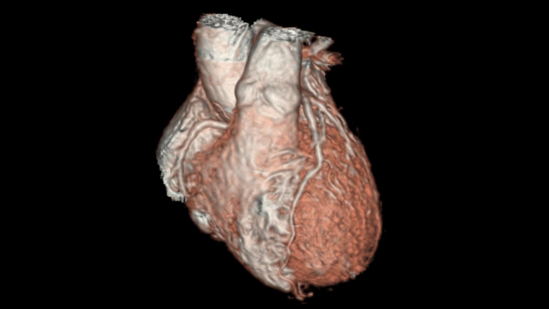 Klinische 3D-Herzbildgebung bei Kindern